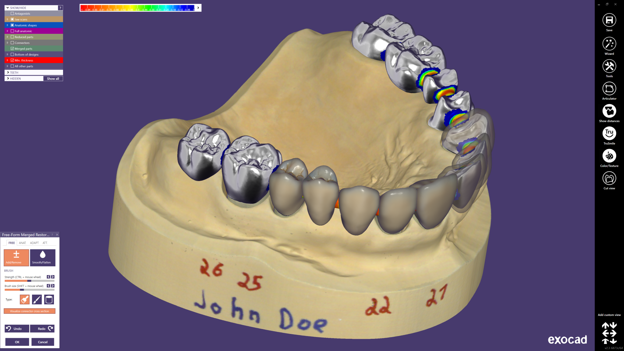 exocad-DentalCAD-Page-05-Preview-2048x1152